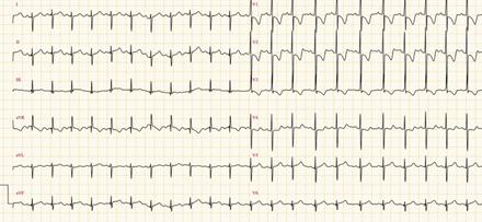 Tracé d'électrocardiogramme